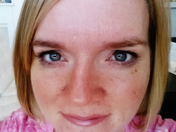 How to get rid of freckles laser skin lightening